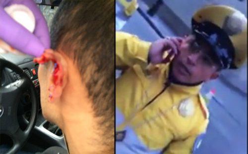 policia-mocha-orejas-mutila-a-un-ciudadano-en-el-df
