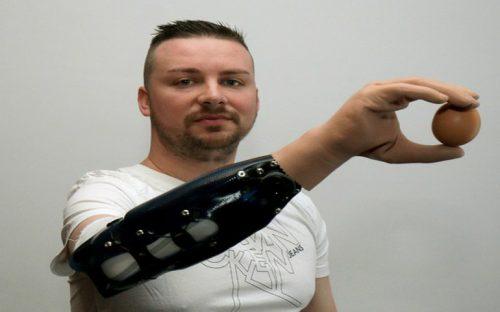 crean-mano-bionica-comparable-con-una-de-injerto