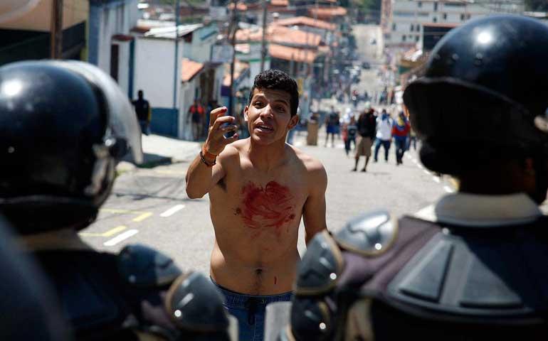 estudiante-opositor-a-maduro-muere-de-un-disparo-durante-protesta