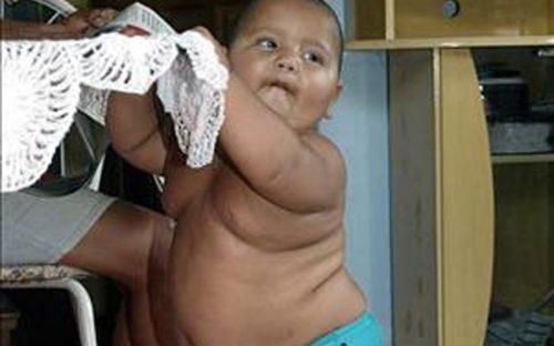 senador-propone-multar-a-los-padres-de-ninos-obesos