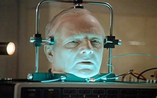 trasplantes-de-cabeza-podrian-ser-una-realidad-en-un-par-de-anos