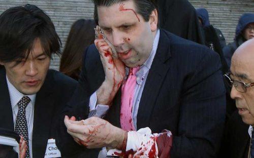 hombre-ataca-a-embajador-de-eu-en-corea-del-sur