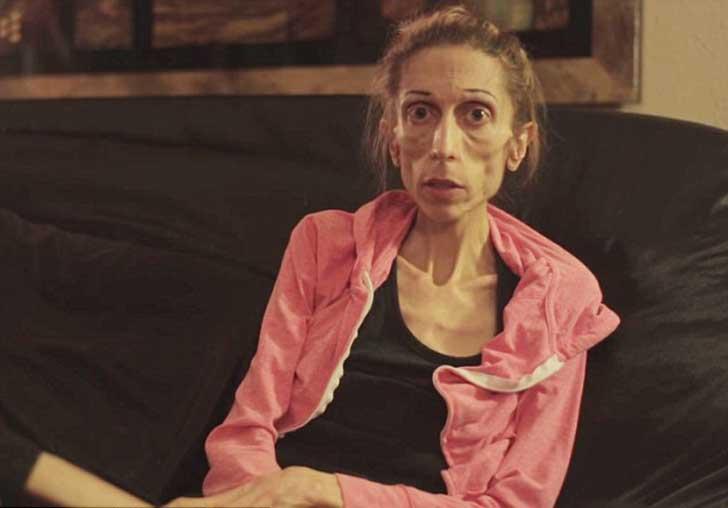 actriz-con-anorexia-pesa-18-kilos-esta-al-borde-de-la-muerte-y-ningun-hospital-quiere-recibirla