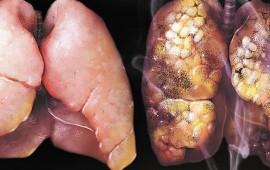 esto-es-lo-que-pasa-con-un-pulmon-despues-de-fumar-60-cigarros