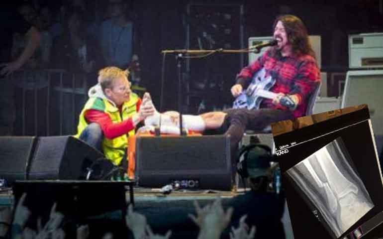 vocalista-de-foo-fighters-se-rompio-la-pierna-en-pleno-concierto
