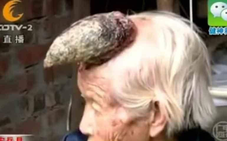 video-mujer-unicornio-de-china-intriga-a-los-medicos