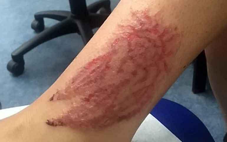 arriesga-su-vida-con-un-tatuaje-de-henna