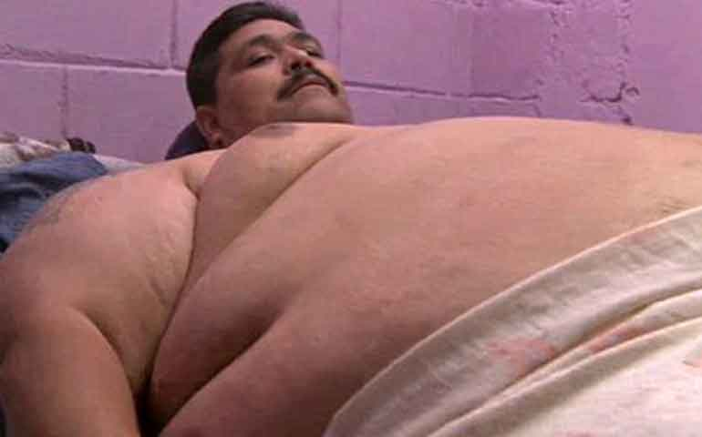 operan-en-guadalajara-al-hombre-mas-obeso-del-mundo