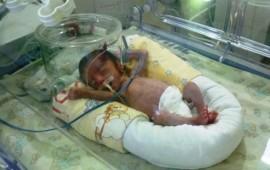nacen-al-ano-al-menos-433-bebes-prematuros-en-nayarit