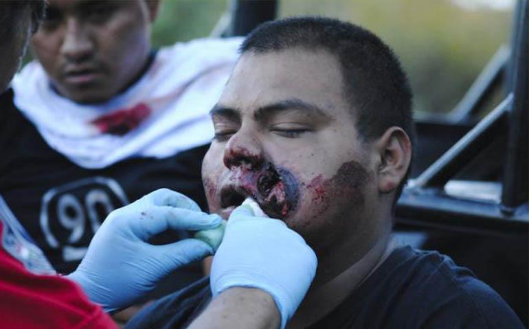policias-persiguen-golpean-y-detienen-a-normalistas-de-ayotzinapa