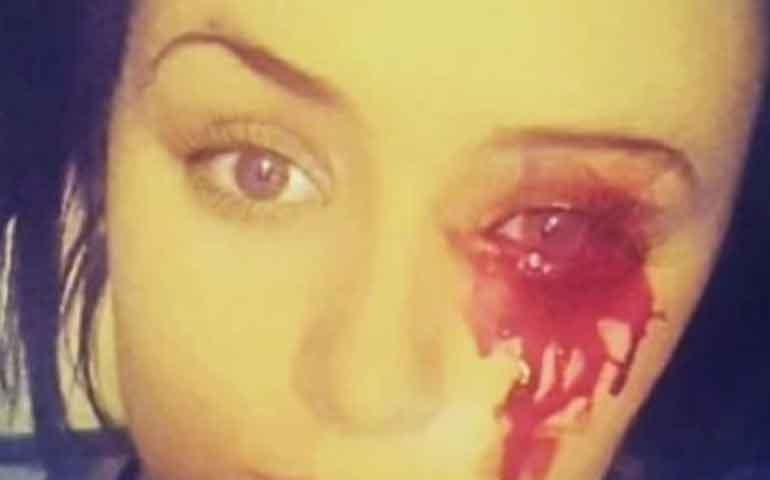 adolescente-llora-lagrimas-de-sangre-y-sus-medicos-desconocen-la-causa