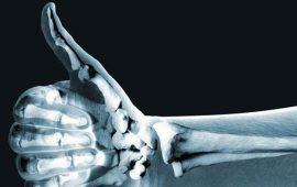 la-enfermedad-mas-comun-que-sufre-nuestro-dedo-pulgar