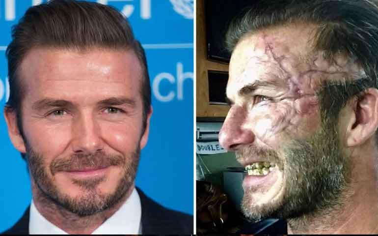 David-Beckham-está-desfigurado-