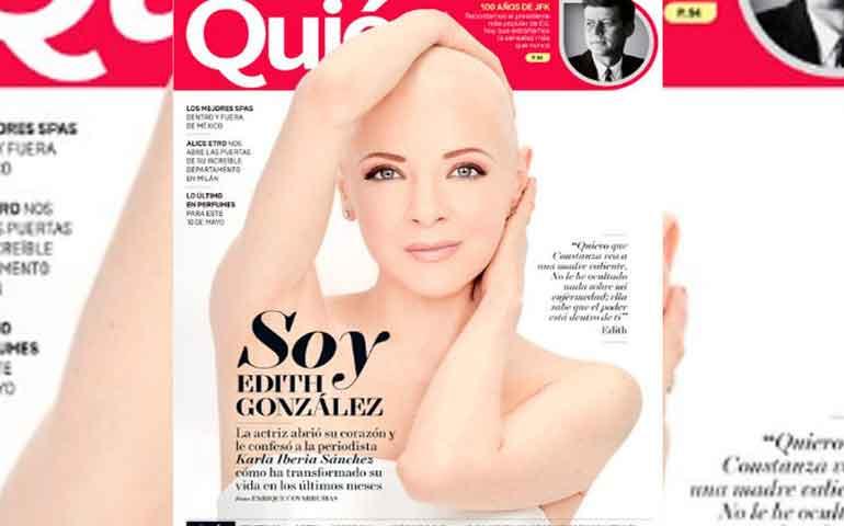 Como-una-guerrera,-Edith-González-posa-sin-cabello-