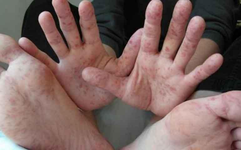 alertan-en-tlaxcala-de-brote-de-virus-que-afecta-a-ninos