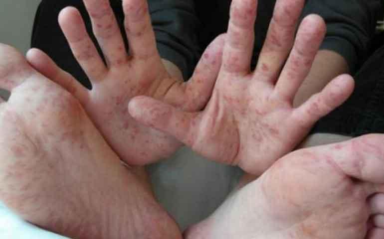 controlan-en-tlaxcala-virus-que-afecta-salud-de-ninos